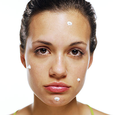 acne-mulher-adulta