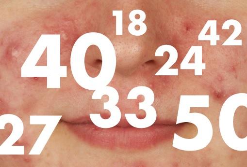 acne-mulher-adulta2