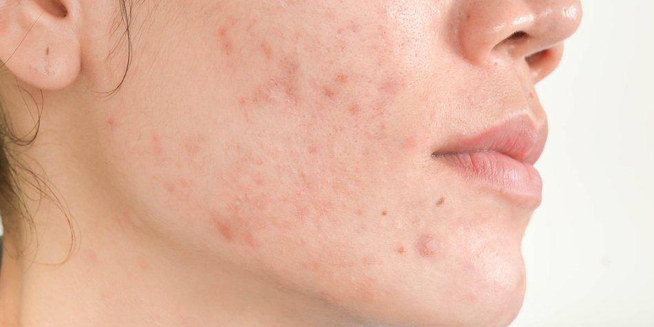 vacina-contra-acne