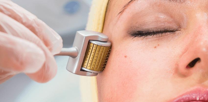 microagulhamento-dermaroller-aumento-colágeno-pele